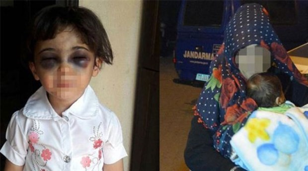 3 yaşındaki kızını feci şekilde döven kadın hakkında karar