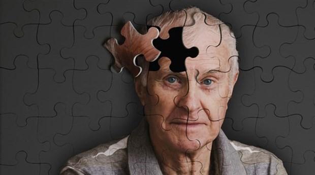 Alzheimer hastalığının erken teşhis yöntemi geliştirildi