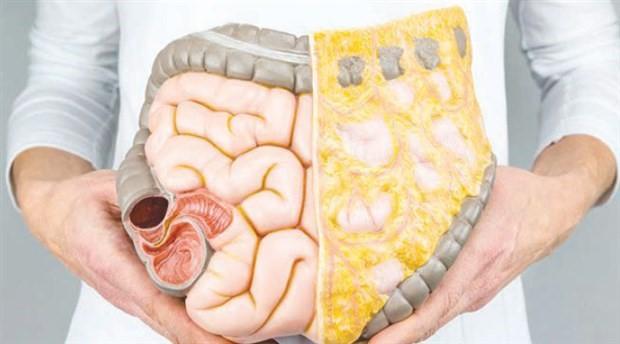 Bağırsak kanserine yol açan 9 neden