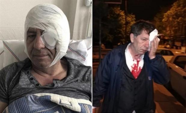 Gazeteci Demirağ, saldırının detaylarını anlattı