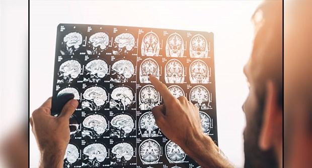 Sinirbilimciler konuşma sinyallerini yazılı metne dönüştürdüler