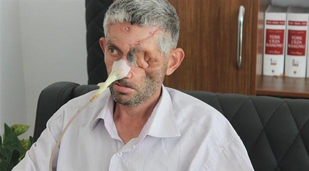 """""""Dişini çektirdi, gözünü kaybetti"""" iddiası"""