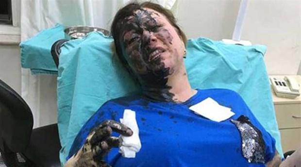İş kadınına yanıcı madde döken zanlılar için mahkemeden karar