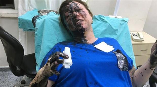 İş kadınına kimyasal madde döken zanlılar itiraz üzerine tutuklandı