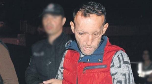 Yüz nakli operasyonuyla tanınan Recep Sert'in tutuklanmasına ilişkin yeni detaylar