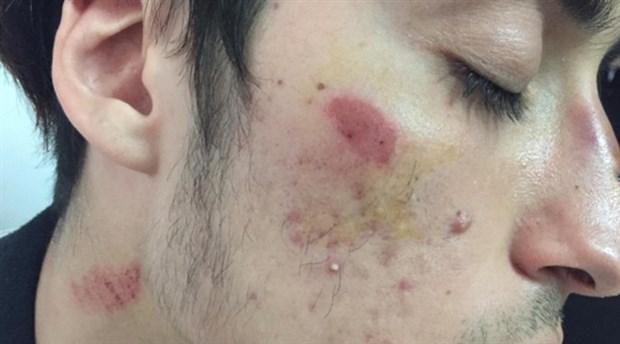 Antalya'da üniversite yurdunda ırkçı saldırı