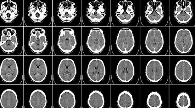 Çin'de Alzheimer ilacı için onay çıktı