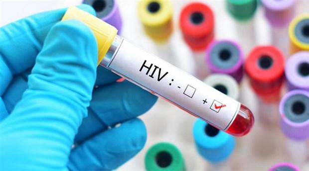 Bilim insanları, 20 yıl sonra ilk kez yeni bir HIV türü keşfetti