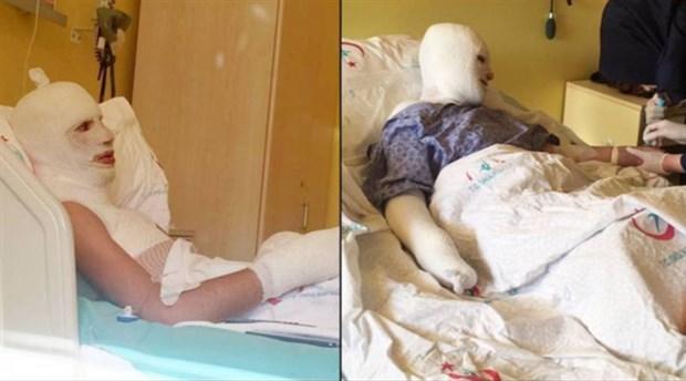 Dicle Üniversitesi'nde iki öğrenci ihmaller sonucu yandı