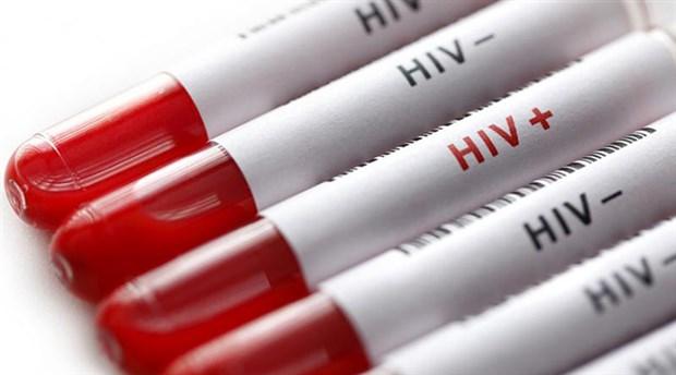 Türkiye'de HIV yayılıyor