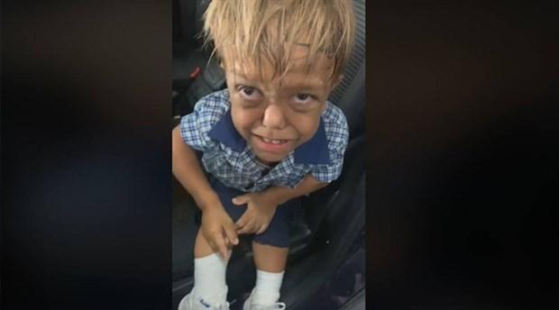 Cüce olduğu için zorbalığa maruz bırakılan çocuğun ailesi, yardımları bağışlayacak