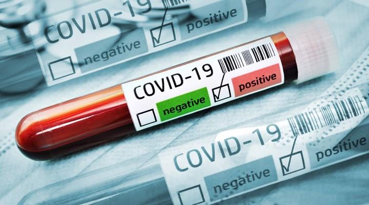 Paket dağıtım şirketi UPS'de koronavirüs alarmı