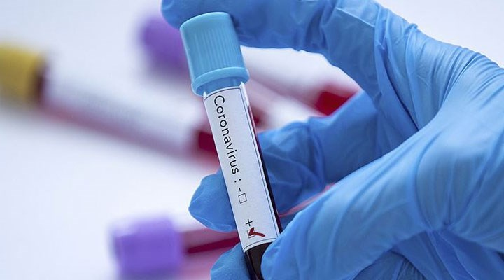 Prof. Dr. Ateş Kara paylaştı: Hangi kan grubu daha avantajlı?