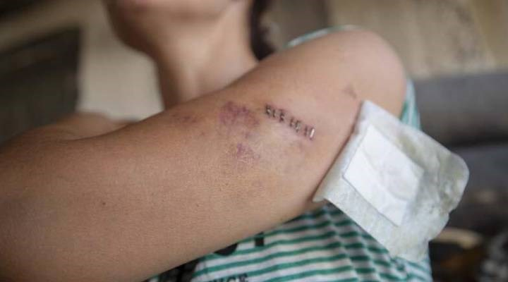 Uzaklaştırma kararına rağmen bıçaklanan kadın: Evim cezaevine döndü