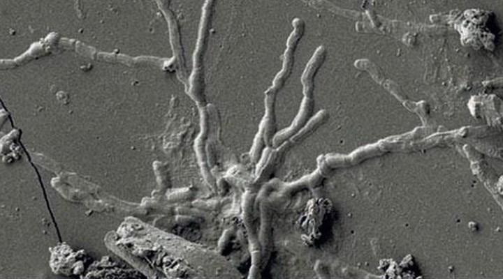 İtalya'da 2 bin yıl öncesine ait kafatasından sağlam beyin hücresi keşfedildi