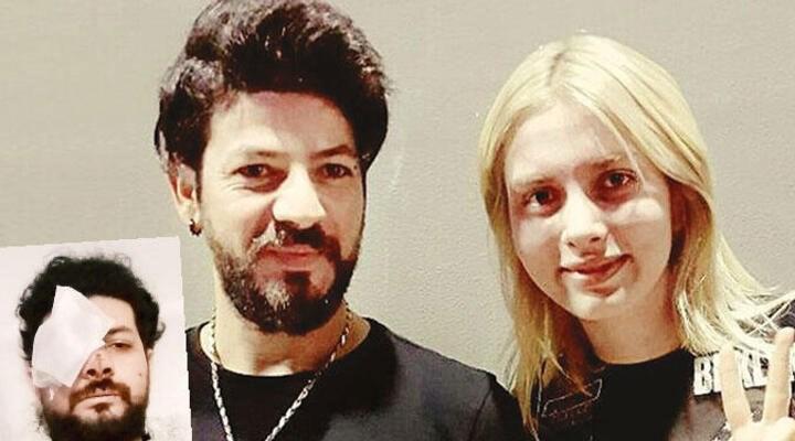 Müzisyen Şahan Dinç, maganda kurşunuyla bir gözünü kaybetti