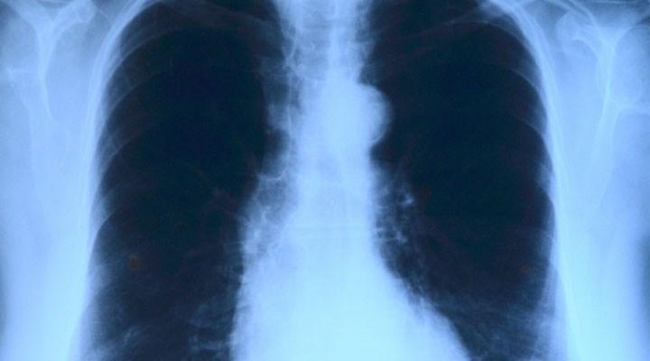 Asbest kaynaklı akciğer zarı kanserine neden olan gen bulundu