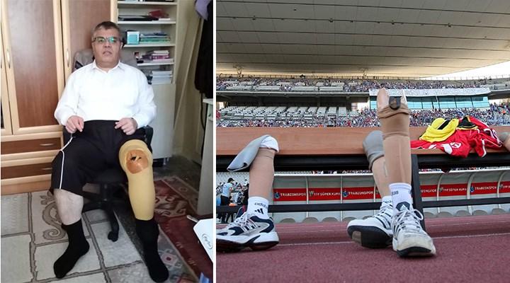 SGK protez ve ortez ücretlerinin tamamını karşılamıyor: Kırık dökük protezlerle hayata tutunma savaşı