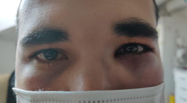Sağlıkta şiddet vakalarına yenisi eklendi: Hemşirenin burnunu kırdı