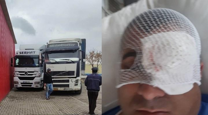 TIR'lar soyuluyor, şoförler saldırıya uğruyor: Türkiyeli TIR şoförü sol gözünü kaybetti