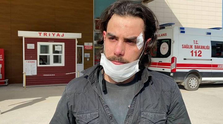 Ödenmeyen maaşını isteyen Suriyeli işçi, patronu tarafından dövüldü!