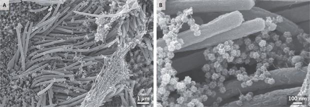 covid-19-un-enfekte-ettigi-solunum-yolu-hucrelerinin-goruntuleri-yayimlandi-780289-1.