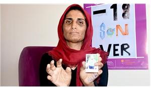 17 yıldır kocasından işkence gören kadının 11 parmağı kesildi
