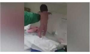 Şaşkınlık yarattı, bebek doğar doğmaz yürümeye çalıştı