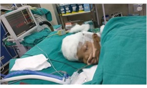 Yapışık ikizler 16 saat süren ameliyatla ayrıldı