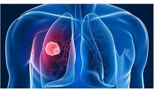 7 yılda, 1 milyon 166 bin 571 kişiye yeni kanser teşhisi konuldu
