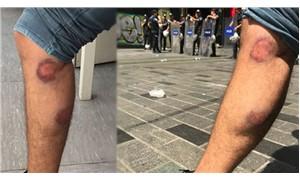 Cumartesi Anneleri eyleminde DHA muhabirine biber gazlı saldırı