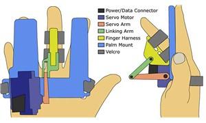 Parkinson hastalığı parmaktan teşhis edilecek