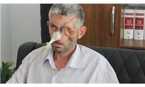 Hatay Valiliği'nden 'Dişini çektirdi, gözünü kaybetti' iddiasına açıklama