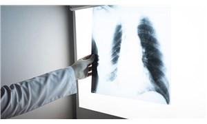 Türkiye'de 40 yaş üstü 7-8 kişiden biri KOAH hastası