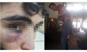 Çocuk işçiye işkence eden patronlar tutuklandı
