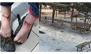 Kar topu oynarken vücudunda yanık oluşan Berat'a doku nakli yapıldı