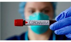 Japonya koronavirüs tedavisinde kullanılacak ilaç için çalışmalara başladı