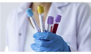 İstanbul'da özel laboratuvar koronavirüs sonuçlarını bakanlığa vermemiş