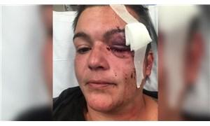 ABD'de polis gazeteciyi gözünden vurdu