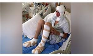 Elektrik akımına kapılan çocuk ağır yaralandı
