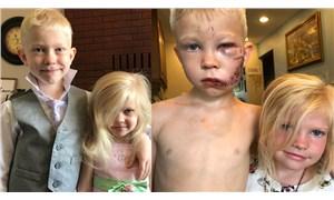 6 yaşındaki çocuk kardeşini köpek saldırısından kurtarmak için araya girdi