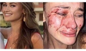 Dünyaca ünlü model Kyryliuk: Çeşme'de Momo Beach Club güvenliği bize saldırdı