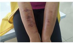 Bir güzellik merkezi skandalı daha: Genç kadının vücudu yandı