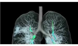 Bilim Kurulu Üyesi Turan: Virüsün yarattığı akciğer hasarı inanılmaz