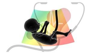 Araştırma: Bebeklerin plasentasında mikroplastik tespit edildi