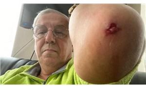 Gazeteci Orhan Uğuroğlu'na saldıranlardan biri MHP'li belediyede güvenlik görevlisi çıktı