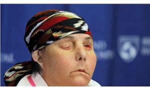 ABD'de iki kez yüz nakli yapılan Carmen ilk kez yüzünü gösterdi