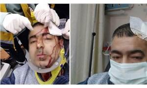 İmamın tabureyle saldırdığı müezzinin kafasına 10 dikiş atıldı
