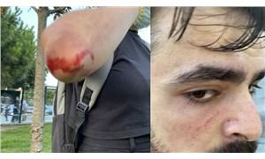 Konya'daki katliamı protesto edenlere Kasımpaşa'da faşist saldırı