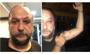BirGün gazetesi yazarı Güvenç Dağüstün saldırıya uğradı